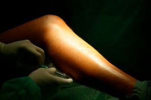 Sclerotherapy-Treatment for Unwanted Veins